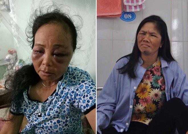 Nghi bắt có trẻ con, 2 phụ nữ bị đánh đập tới nhập viện