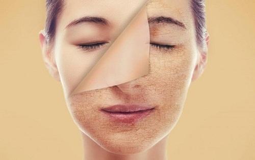 cách chăm sóc da, phục hồi da, cách phục hồi da