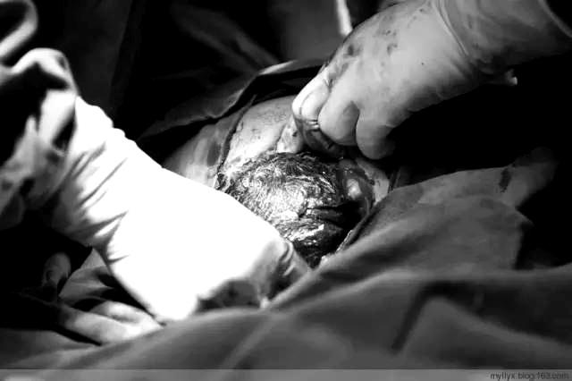 sinh mổ, nỗi đau của phụ nữ sinh mổ, hãy thương vợ nhiều hơn