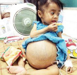 bị ung thư từ khi mới sinh, bé chỉ nói được 2 từ mẹ và đau