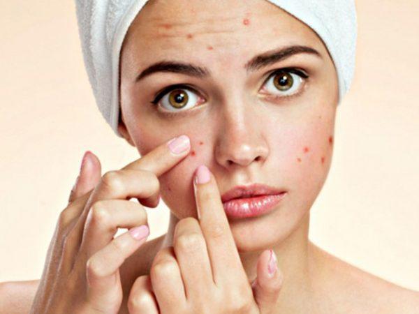 Những thành phần mà làn da dầu mụn phải tuyệt đối tránh xa