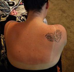 Cách cấp cứu làn da bị cháy nắng trong thời tiết hè gay gắt